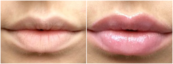 Lip Voltage Before and After