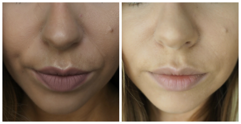 Dermal Fillers Nose to Mouth Lines