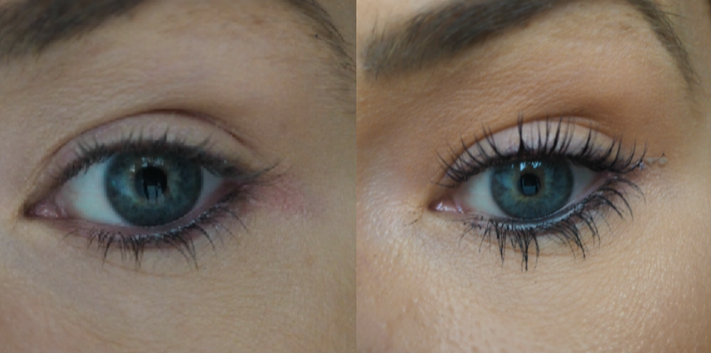 Results from LVL lash lift