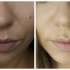 My Dermal Fillers Experience (Nasolabial Folds)